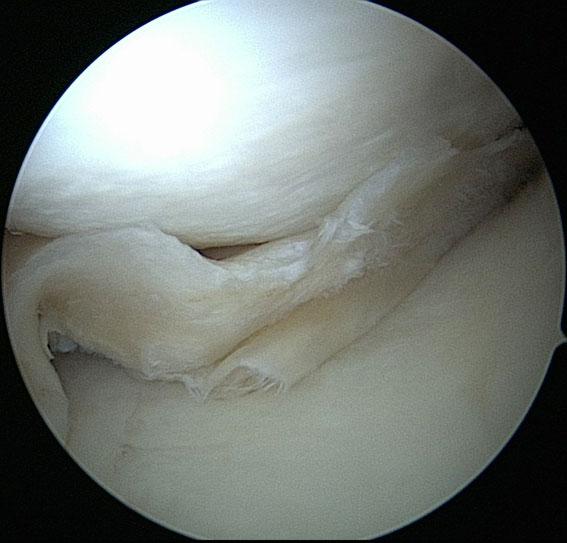 symptomen scheur meniscus