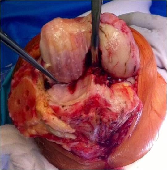 ernstige artrose