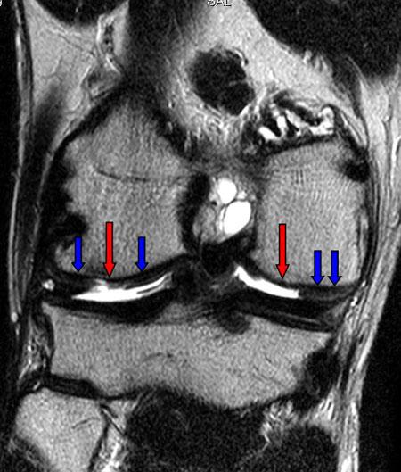 kraakbeenletsel graad 4